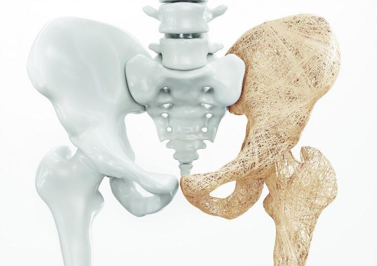 他汀类药物可以根据剂量增加或降低骨质疏松症风险