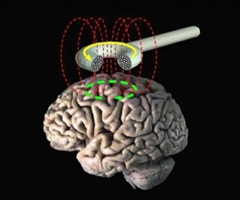 深磁刺激改善了强迫症的症状
